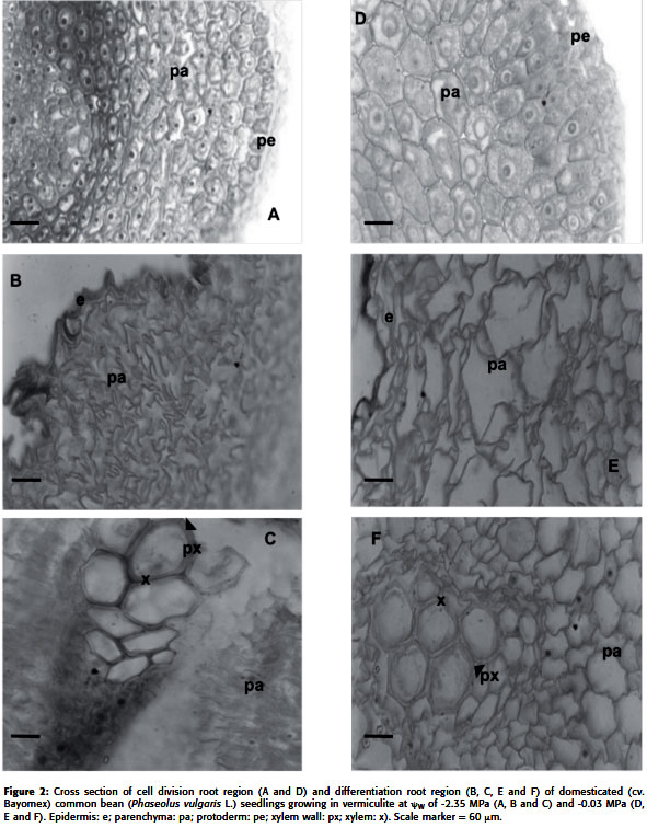 Anatomical Root Variations In Response To Water Deficit Wild And