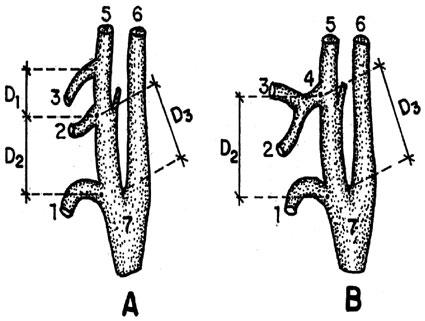 Ligadura Extraoral de la Arteria Lingual: Estudio Anatómico y ...