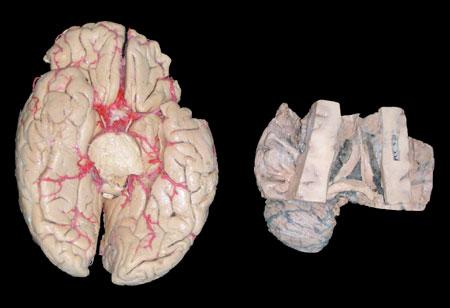 Plastinación, una Herramienta Adicional para la Enseñanza de la Anatomía