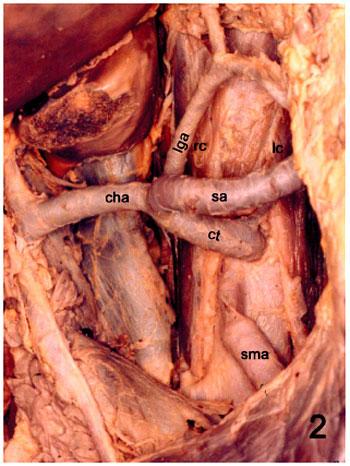Anatomía y Variaciones del Tronco Celíaco
