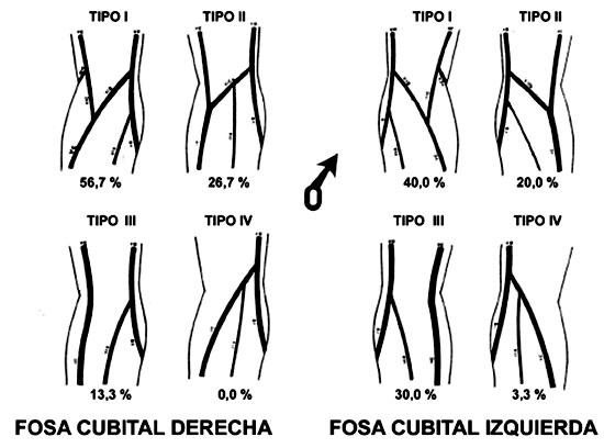 Formaciones Venosas de la Fosa Cubital en el Individuo Mapuche ...