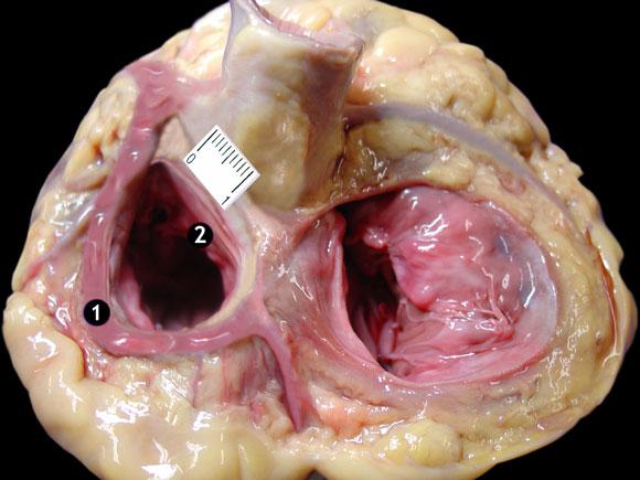 Relaciones Biométricas del Anillo Atrioventricular Izquierdo y las ...