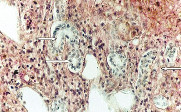 diabetes inducida por estreptozotocina inducida