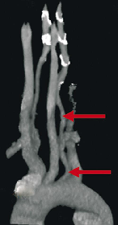 Arteria Vertebral Izquierda Aberrante