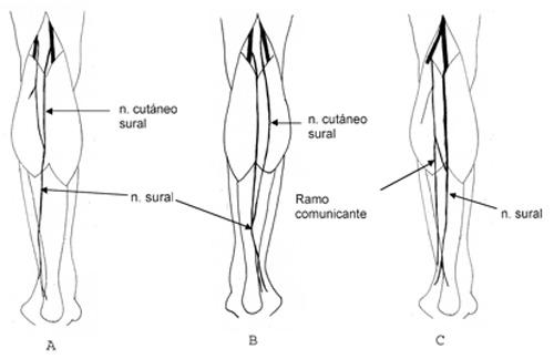 Formación del Nervio Sural en Individuos Chilenos