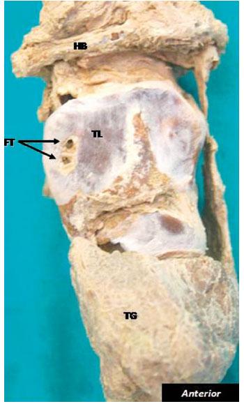 Incidencia del Foramen Tiroideo en la Población de Sudáfrica
