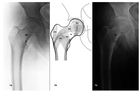 Anatomía de la Cabeza Femoral Humana: Consideraciones en Ortopedia ...