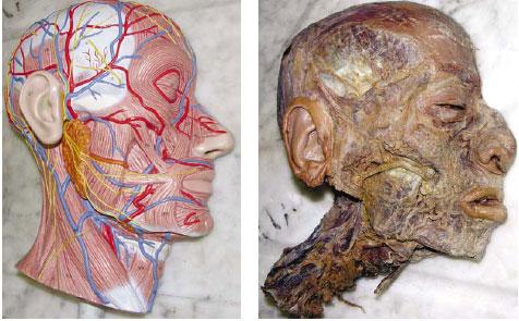 Evaluaciones Prácticas Objetivadas en Anatomía: Diferencias de ...