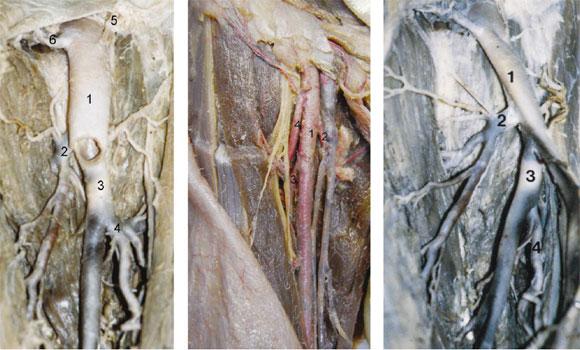 Las Arterias Circunflejas Femorales en el Triángulo Femoral