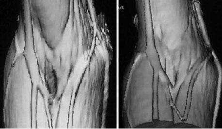Estudio de las Venas de la Fosa Cubital a través de la Tomografía ...