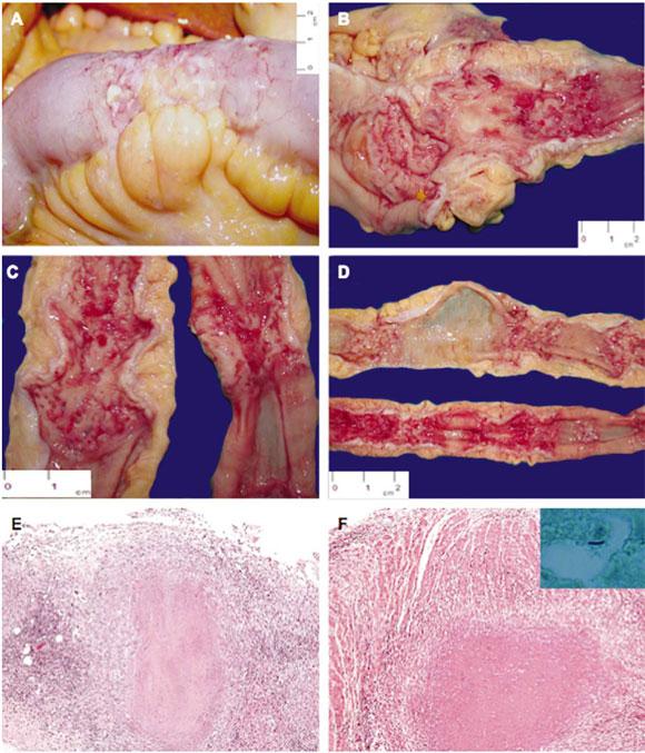 Tuberculosis Intestinal Secundaria: Hallazgos Morfológicos en un ...