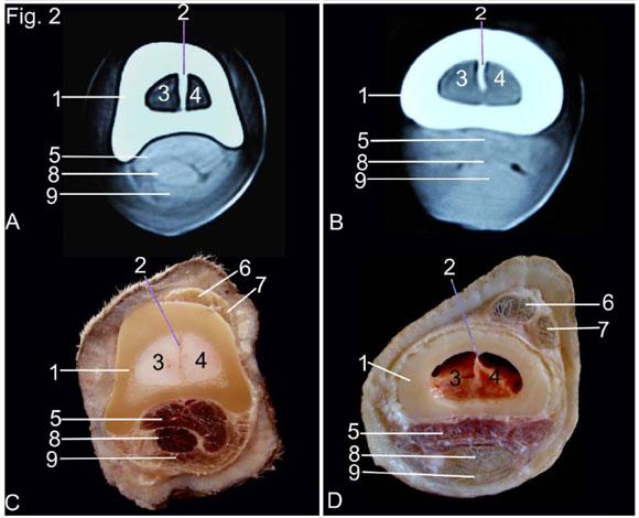 Anatomía por Tomografía Computarizada y Sección Transversal del ...