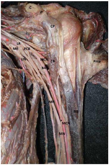 Comunicación Bilateral de los Nervios Músculocutáneo y Mediano ...