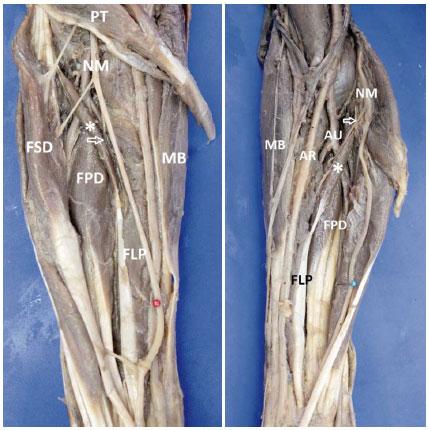 Múltiples Variaciones Musculares y Neurovasculares en los Miembros ...