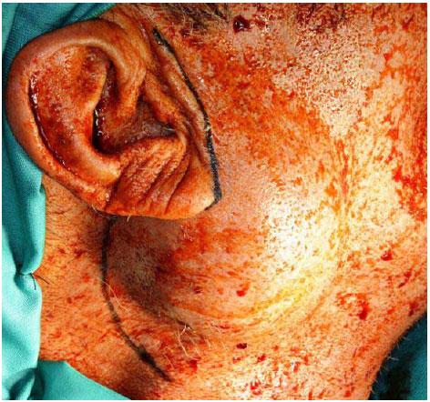 Consideraciones Anatómicas en la Parotidectomía: Revisión de la ...