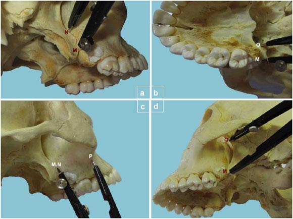 Estudio Anatómico de la Región Pterigopalatina en Cráneos Macerados ...