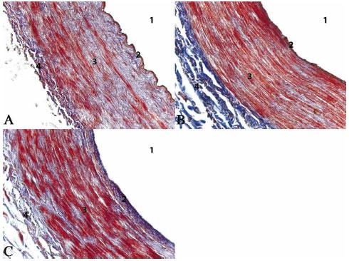 Estudio Morfométrico de la Arteria Radial y su Implicación en la ...