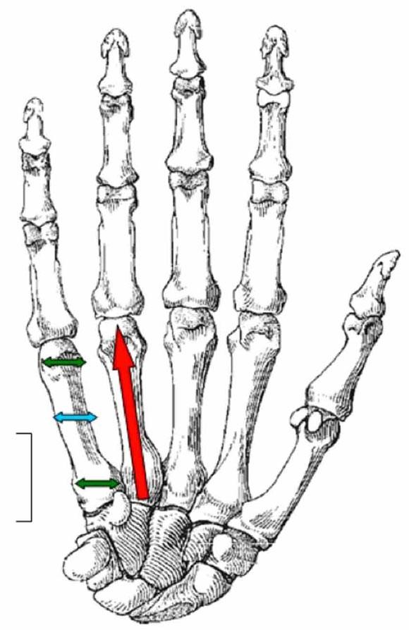 Características Biométricas de los Huesos Metacarpianos en ...
