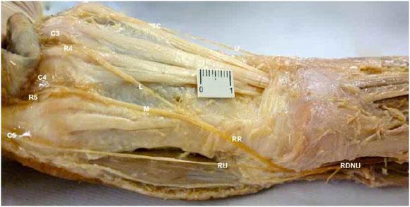 Nervios dorsales de los dedos