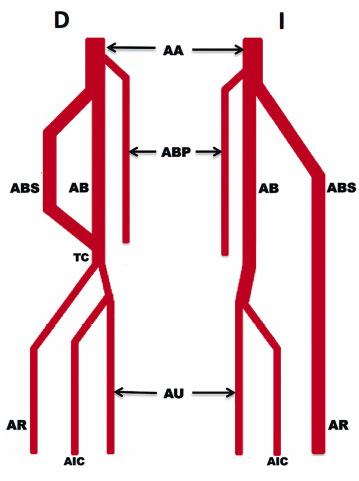 Arteria Braquial Superficial Bilateral: Una Variación Anatómica ...