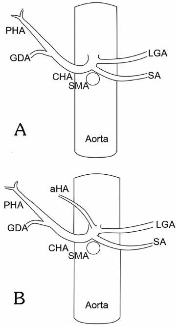 Arteria Heptica Accesoria Derivada Del Tronco Celiaco Hallazgo En