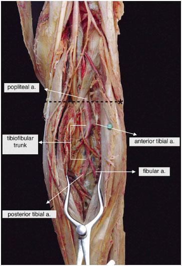 Estudio Biométrico de las Bifurcaciones de la Arteria Poplítea y del ...