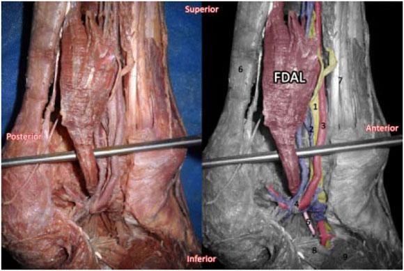 descripción morfológica del músculo flexor largo accesorio de los