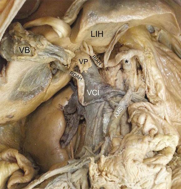 Variaciones Vasculares en Cavidad Abdominal y de Vías Urinarias ...