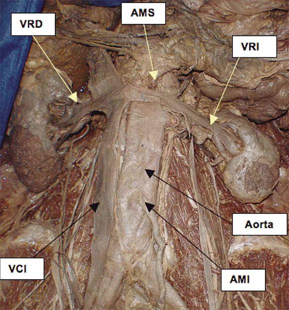 Evaluación del Conocimiento Anátomo-Quirúrgico del Sistema de la ...