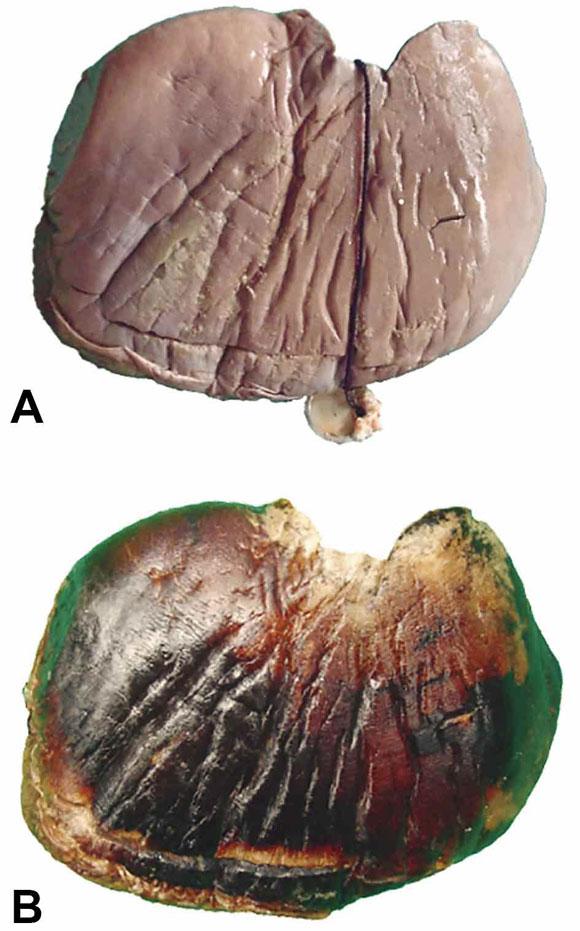 Plastinación y Descripción Anatómica de Hígado, Bazo, Estómago y ...