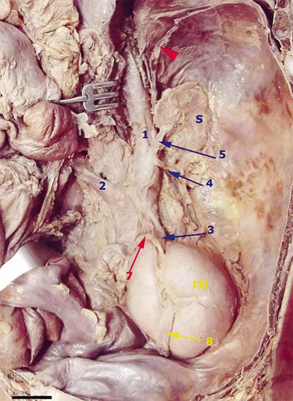 Ausencia Congénita de la Vena Porta Hepática Asociada a Malrotación ...