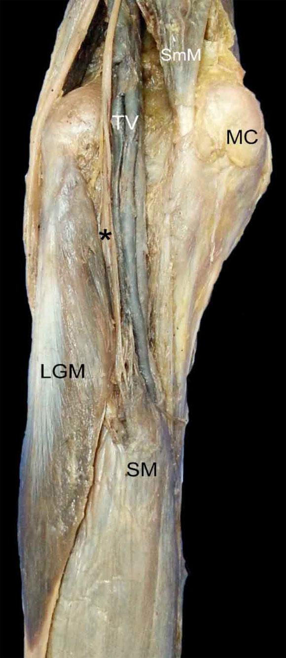 Agenesia Del Gastrocnemio Medial Y Del Msculo Plantar Presentacin