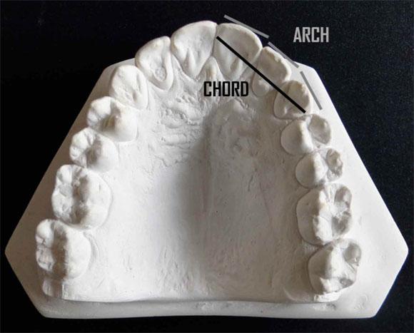 Odontologia Legal Antropologia Forense Pdf 44
