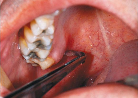 Lesion Atipica En El Paladar Blando Relato De Caso