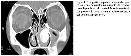 Displasia osteofibrosa de cornete inferior: causa inusual de ...