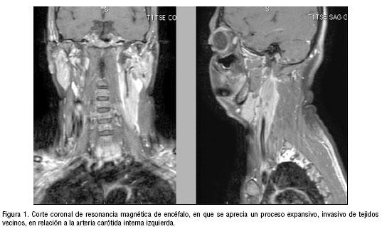Tumor miofibroblástico inflamatorio de arteria carótida interna ...