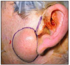 Quiste epidermoide en la región preauricular: Reporte de un caso