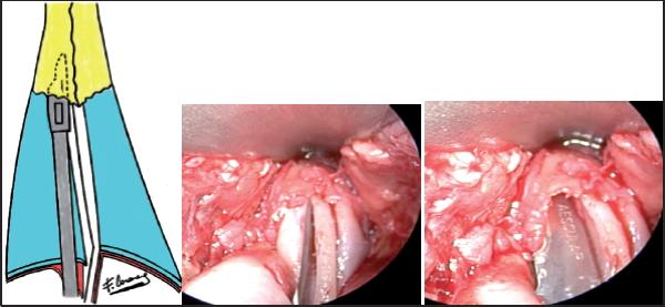 Autoespaciador en rinoplastía por técnica abierta y cerrada