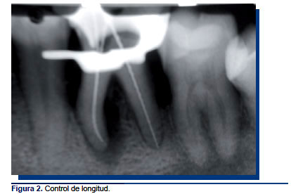 Tratamiento de una lesión endoperiodontal tipo III