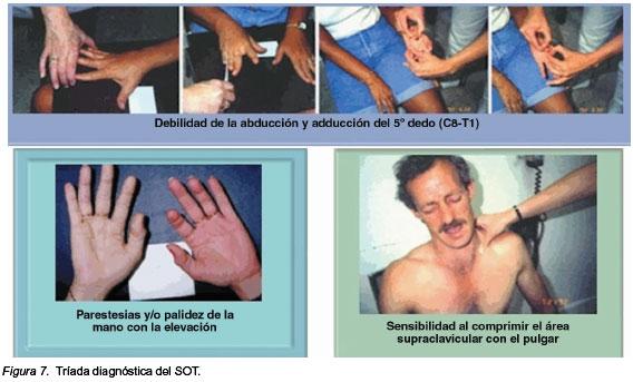 El diagnóstico del síndrome del opérculo torácico: Mitos y realidades