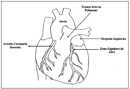 Ligadura de la arteria coronaria descendente anterior izquierda en ...