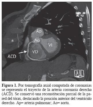 Fisiopatología del ventrículo derecho