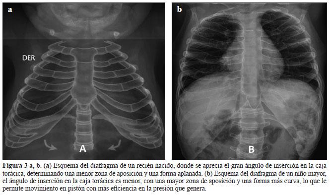 Evaluación por imágenes del diafragma en el niño