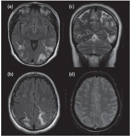 Encefalopatía hipertensiva del tronco encefálico radiología