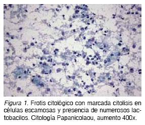Bacilos de doderlein sin cytolysis