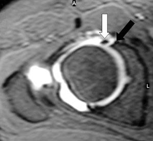Resonancia magnetica de rodilla con contraste