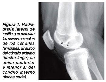 signos y sintomas de rotura de ligamento cruzado anterior