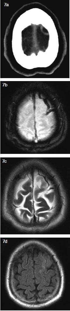 signos y sintomas de trombosis venosa cerebral