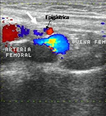 Utilidad del Ultrasonido en el diagnóstico de las hernias inguinales