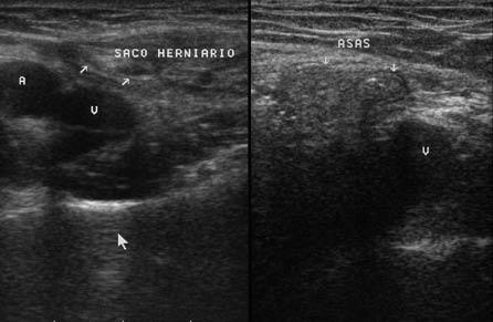 ecografia para detectar hernia umbilical